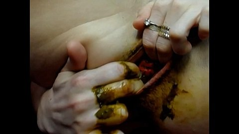 Masturbating my Prolapse Shit (Chapter 2) Picture 4